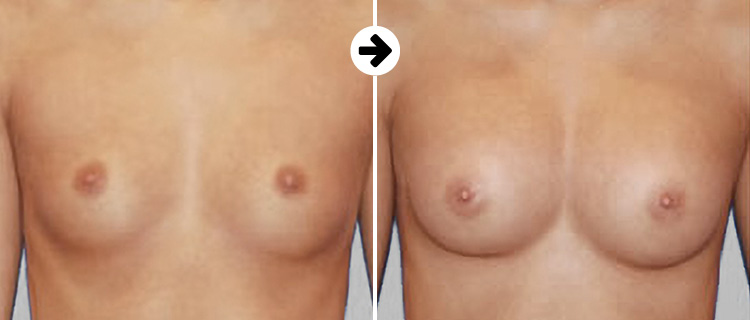Breastfast before after 2