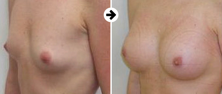 Breastfast before after 3
